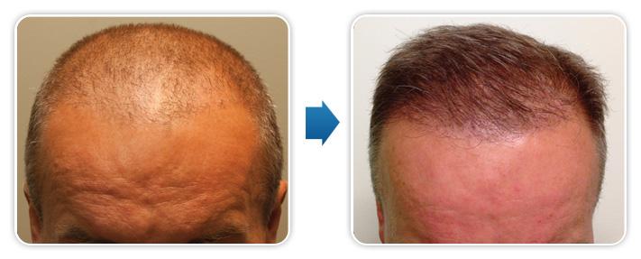Przeszczep włosów