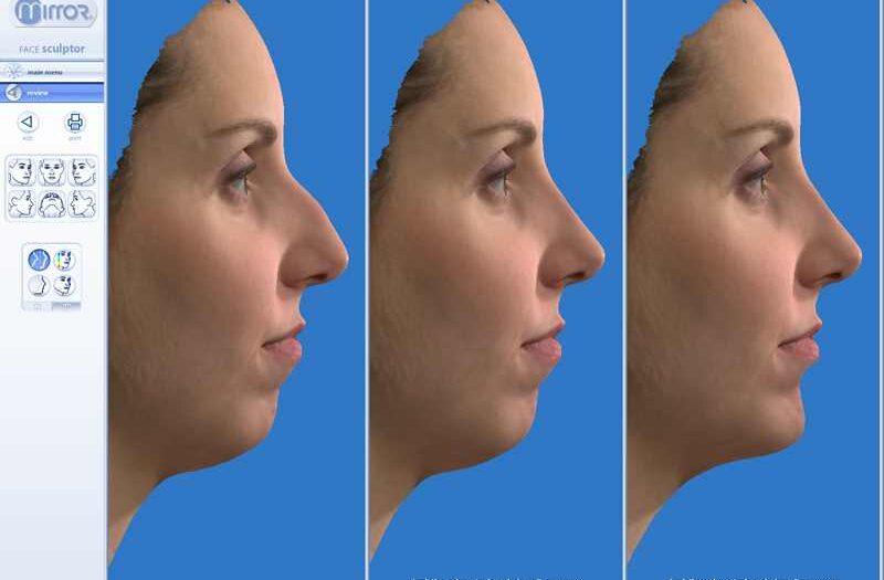 wizualizacja operacji plastycznej